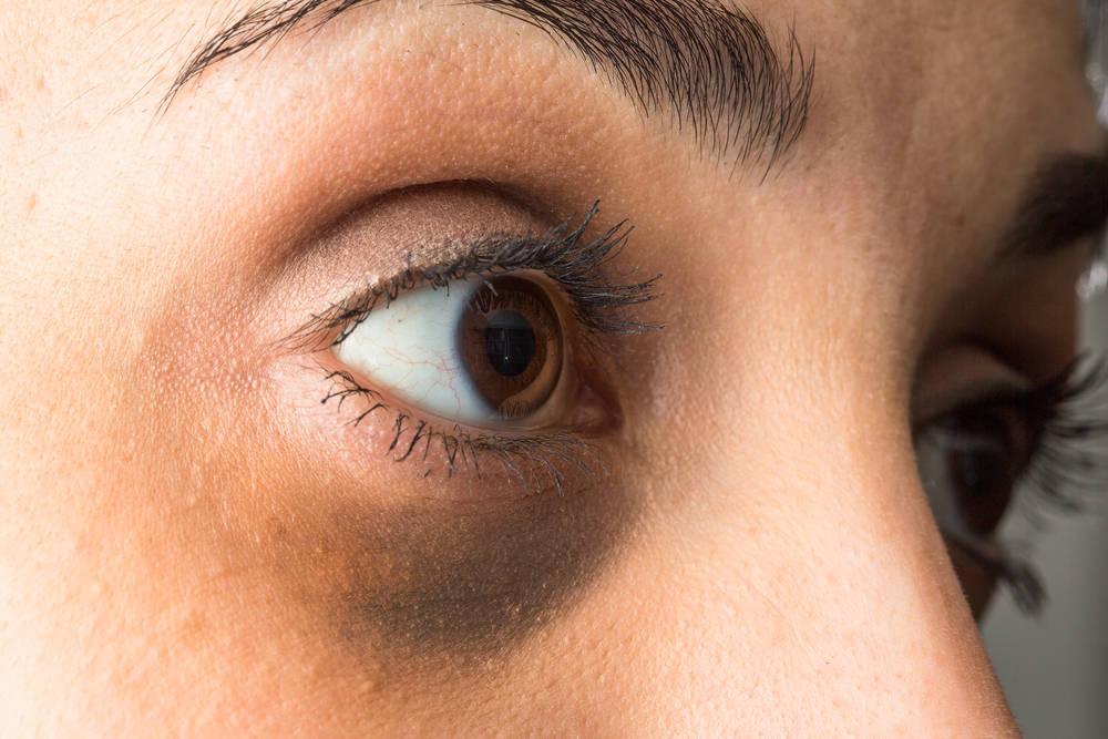 Ojeras: un antónimo de la belleza y la salud
