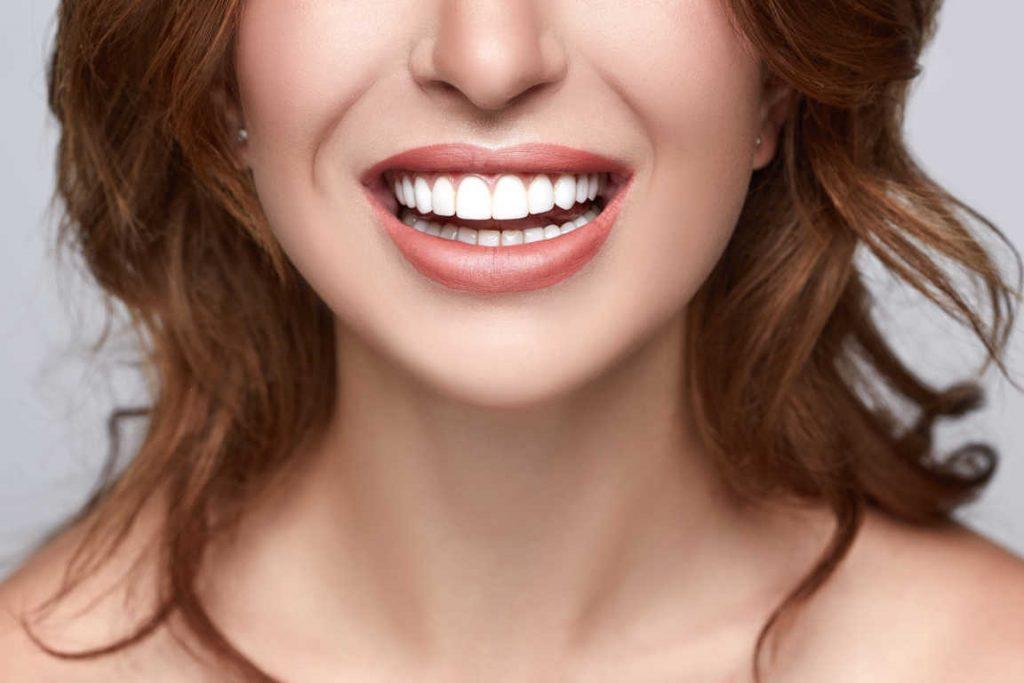Consejos para una buena estética dental